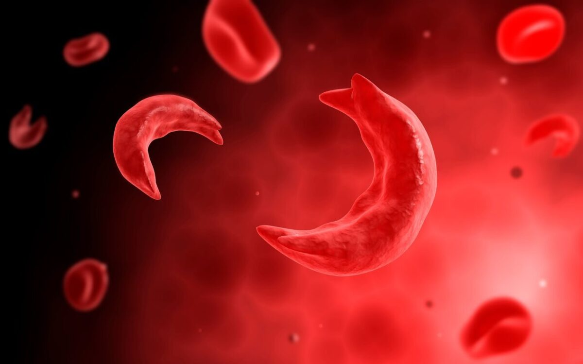 Understanding and Treatment of Sickle Cell Pain Crisis